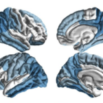 ENIGMA-PD researchers identified a characteristic pattern of brain tissue damage in Parkinson's disease patients. (Image courtesy of Paul Thompson and the ENIGMA Consortium)